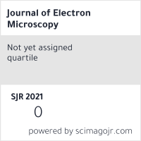 Journal of Electron Microscopy